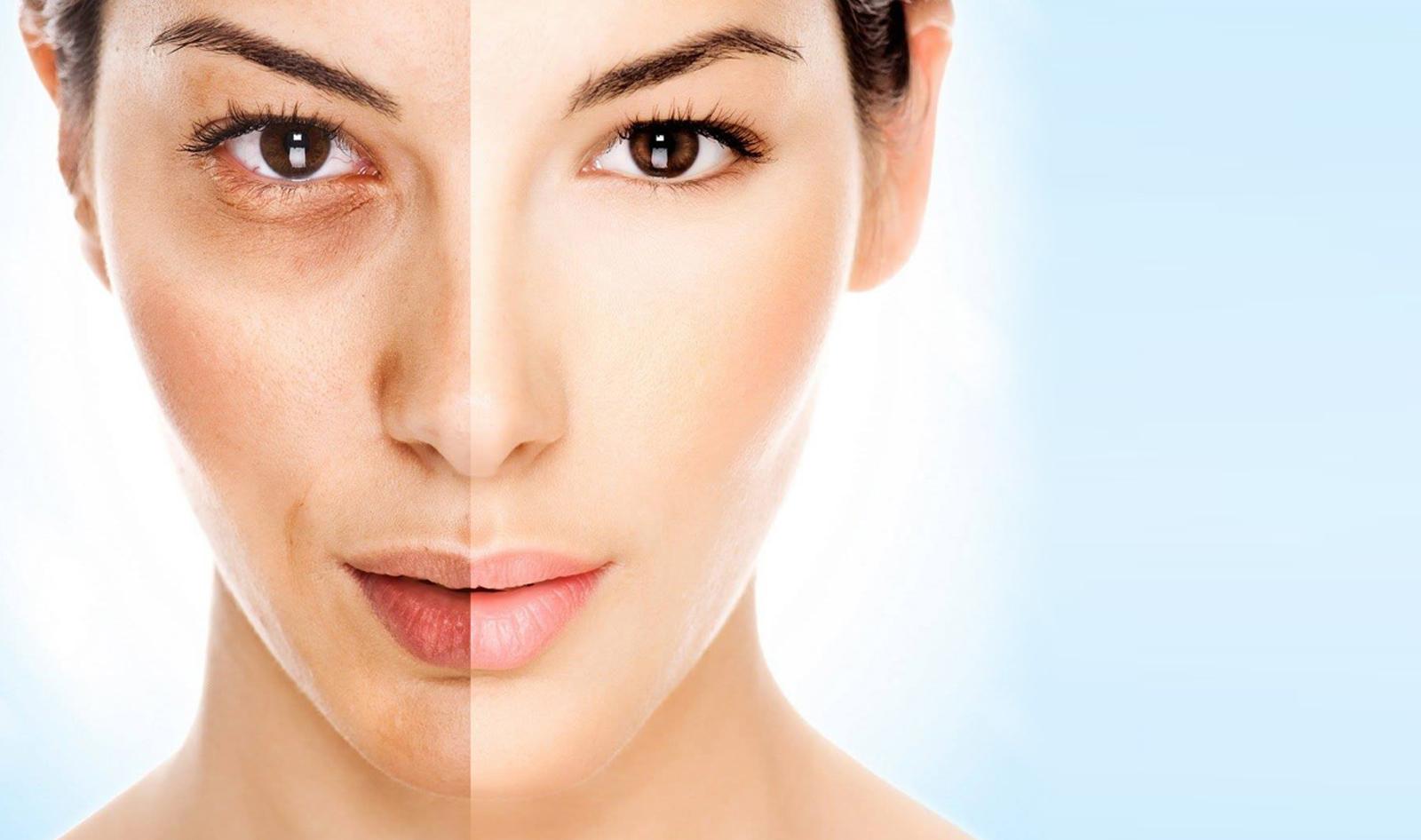 Чем и как отбелить кожу лица в домашних условиях быстро